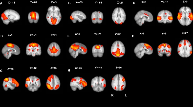 Eight covarying brain functional networks revealed by resting state functional MRI