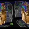 White matter tracts generated from DTI data