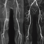 PVD and Angiography