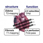 Cardiac Structure & Function