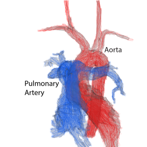 Congenital Heart Disease & BAV