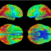 High density activation tracking of the Brain using Novaspec. Activation emphasizes the visual areas of the brain in acute learning under stress.
