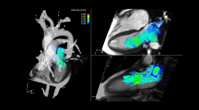 4D flow MRI of blood flow from the pulmonary veins to the left atrium and left ventricle