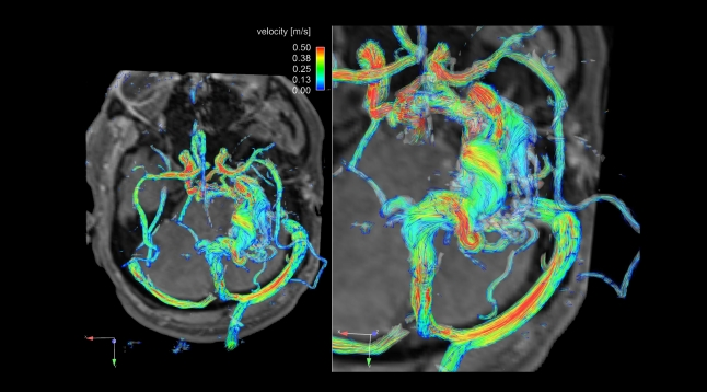 Intra-cranial hemodynamics in a patient with cerebral arterio-venous malformation (AVM)