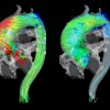 4D flow MRI visualizes 3D blood flow characteristics in a patient with ascending aortic aneurysm