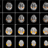 motor activation detected using gradient echo EPI at 1.7x1.7x3mm3 resolution and high resolution trueFISP at 1.25x1.2x5.2mm3. The trueFISP results are more accurately localized to gray matter in the motor cortex.